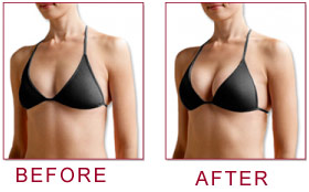 Breast Actives Before After